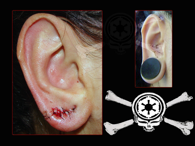 ear-lobe-1
