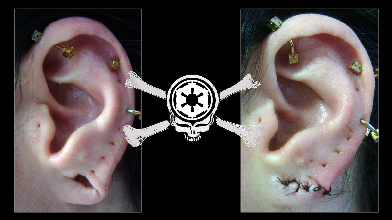 ear-lobe-4