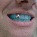 Até que os dentes mudem de cor…
