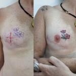 Tatuadores buscam ajudar mulheres que passaram por mastectomia
