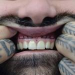 Tatuando gengivas e outras regiões bucais