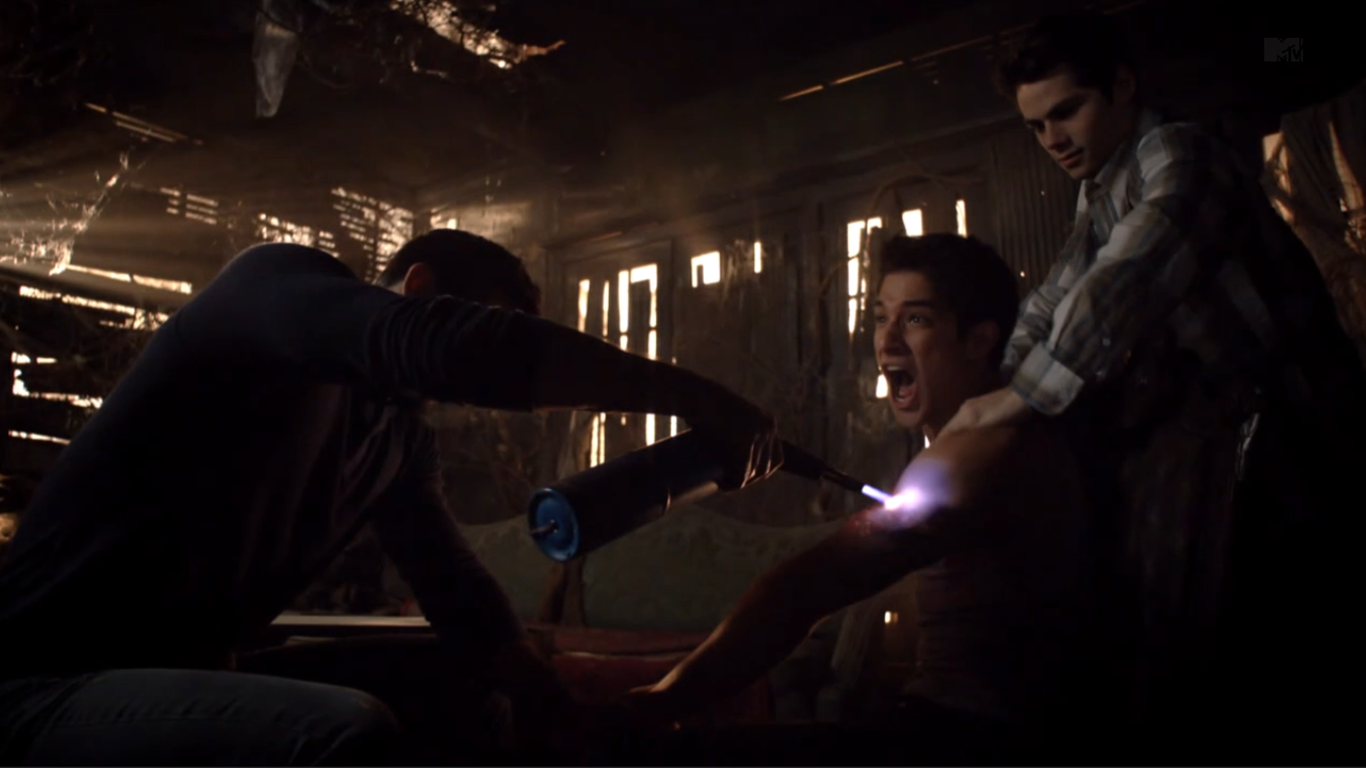 teen_wolf_season_3_episode_1_tattoo_tyler_hoechlin_tyler_posey_dylan_obrian_derek_hale_scott_mccall_stiles_tattoo_burn
