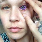 Alerta antes e depois de falha com pigmentação do globo ocular
