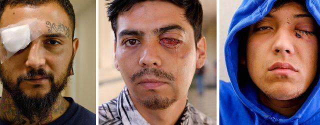 """Hoje (10) o New York Times publicou a matéria It's mutilation: The police in Chile are blinding protesters (tradução livre: É mutilação: a polícia no Chile está cegando protestantes"""". Foi […]"""
